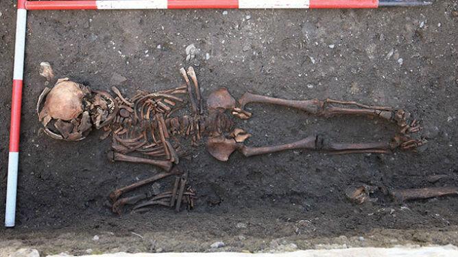 Syfilis w Europie - jednak nie była to wina Krzysztofa Kolumba